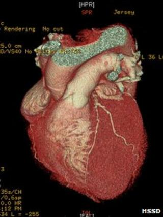 Image of heart from 3D scanner