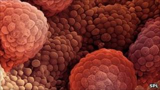 Coloured freeze-fracture scanning electron micrograph of prostate cancer