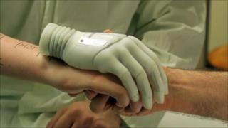 Milo is measured up using his bionic hand prior to the operation