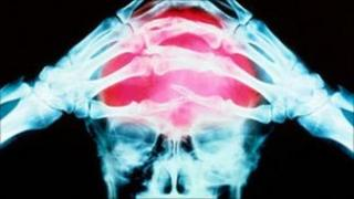 X-ray graphic showing a headache