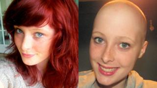 Hannah Cartwright before and after her headshave