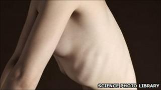 Protruding ribs of a nude woman, illustrating severe weight loss