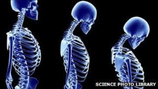 Computer artwork of a human female skeleton degenerating due to the bone disease osteoporosis