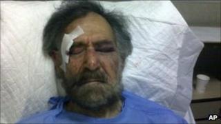 Ali Ferzat in hospital - picture released 25 August 2011