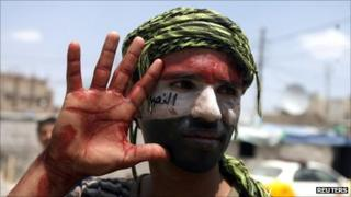 A Yemeni anti-government protester shows his blood-covered hand after helping wounded people during clashes between anti-government protesters and security forces in Sanaa