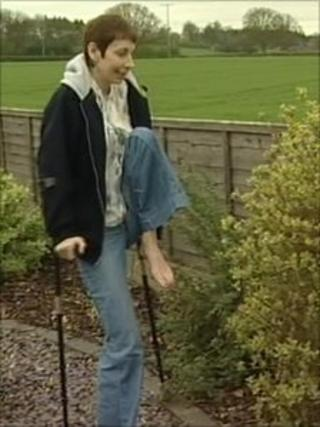 Jo Day before the leg operation