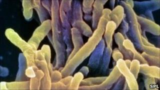 TB bacteria