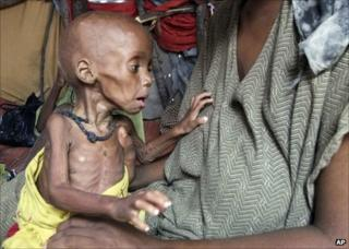 A severely malnourished child from southern Somalia is held in a makeshift shelter at a refugee camp in Mogadishu, Somalia, 20 September