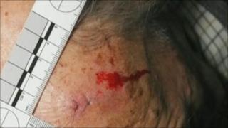 Injury to grandfather