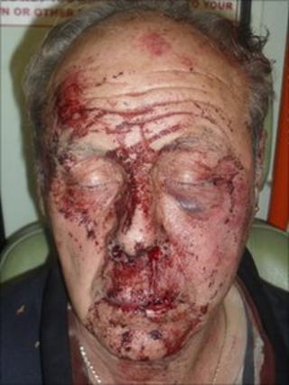 Atherton Cemetery assault victim
