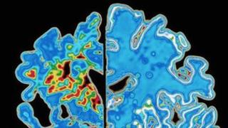 Comparative image of an Alzheimer's brain and a healthy brain. Picture: Science Photo Library