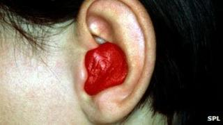 Silicone plug in the ear of a child with glue ear