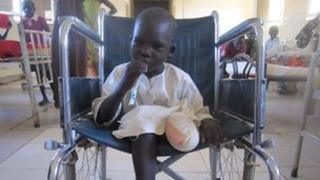 Stephen Gatwech who lost his leg after stepping on a mine in Unity State
