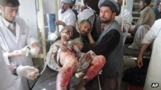 An injured man receives treatment in Taloqan (25 December 2011)