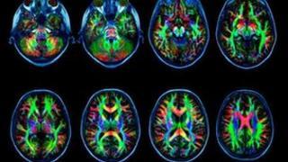 Brain scans of white matter