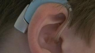 Child's ear and hearing aid