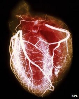 Heart arteriogram