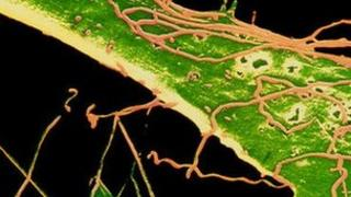 SEM of bacteria which causes syphilis
