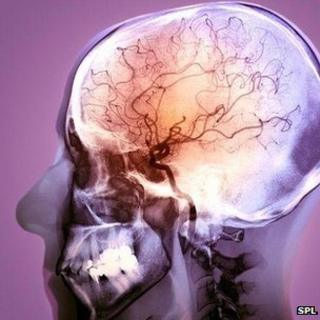 Angiogram of stroke patient
