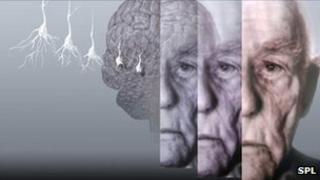 Computer artwork showing the brain of an elderly man affected by Alzheimer's disease