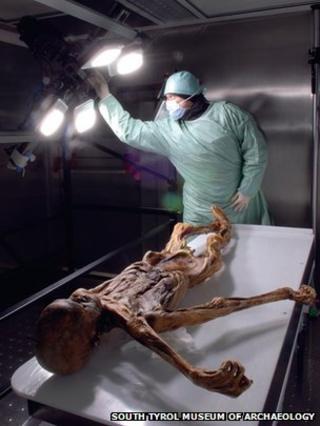 "Oetzi the ""iceman"" in the laboratory"