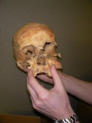 Human remains from Eynsham Abbey
