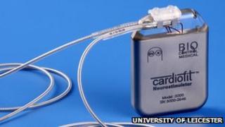 Nerve-stimulating implant