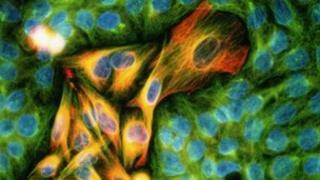 Skin cancer tumour