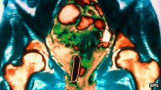 MRI scan showing up ovarian cancer