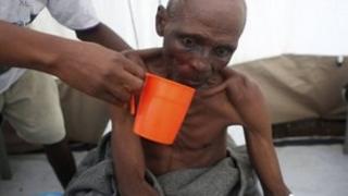 A cholera sufferer is rehydrated in Sierra Leone