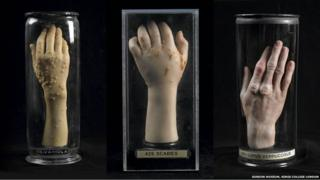 Wax hands made by Joseph Towne on display at the Museum of London