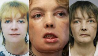A composite image of Isabelle Dinoire showing her before (2001), just after the operation (2006), and in 2009. Left and centre images AP; right image Julien Chatelin, Rex Features