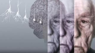 Artist's image showing the brain of an elderly man with dementia