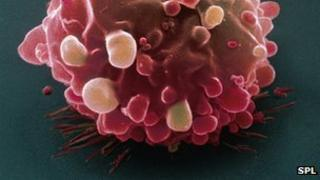 Bowel cancer cell