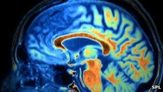 Frontotemporal dementia on MRI scan