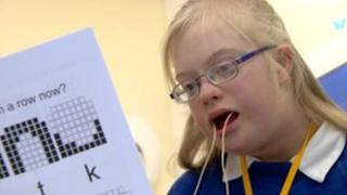 linking downs syndrome and leukemia essay