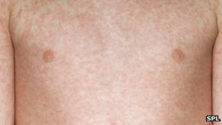 Measles rash on a boy's chest