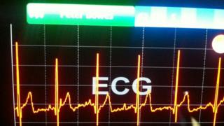 Electrocardiagram