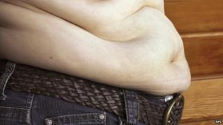A quarter of UK adults is thought to be obese