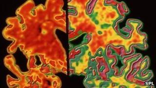 Alzheimer's brain on the left, normal brain on the right