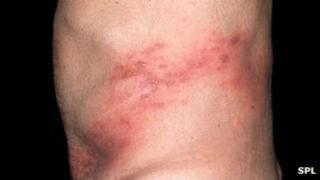 Shingles rash