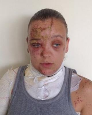 Tara, the acid attack victim