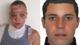 Acid attack victim, left, and person police are seeking