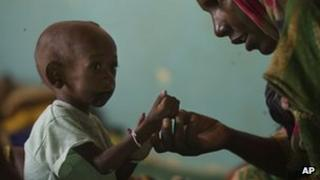 Child being treated for malnutrition at a clinic in Chad