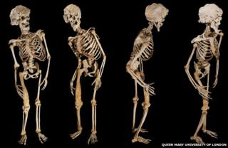 four views of Joseph Merrick's skeleton