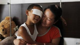 This picture taken on 3 September 2013 shows six-year-old boy, Guo Bin, being held by his mother at a hospital in Taiyuan, north China's Shanxi province