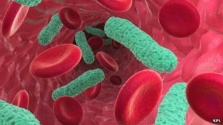 Bacterial infection of the blood causing sepsis