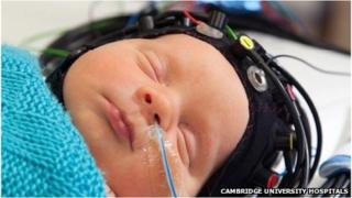 Baby being monitored for brain function