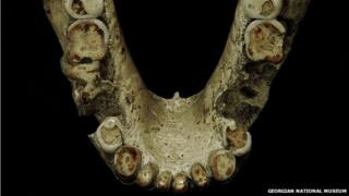 Heavy tooth wear on hominid fossil