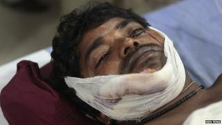 An injured bomb blast victim lies in a hospital in the eastern Indian city of Patna October 27, 2013